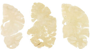 Scan of normal brain<br/>