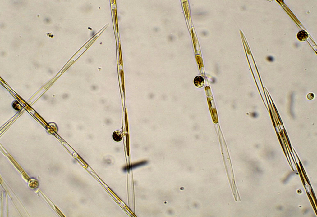 A close up of the diatom that produces the marine toxin domoic acid.  (NOAA)