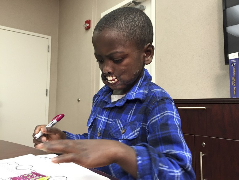 Eight-year-old Dunia Sibomana draws pictures during an interview at Stony Brook Children's Hospital, Monday, Jan. 4, 2016, in Stony Brook, N.Y. Sibomana was left disfigured after he was attacked two years ago while playing with his brother and cousin near a nature preserve in the Congo by a group of chimpanzees. He will undergo rare facial reconstruction surgery. (AP Photo/Mike Balsamo)
