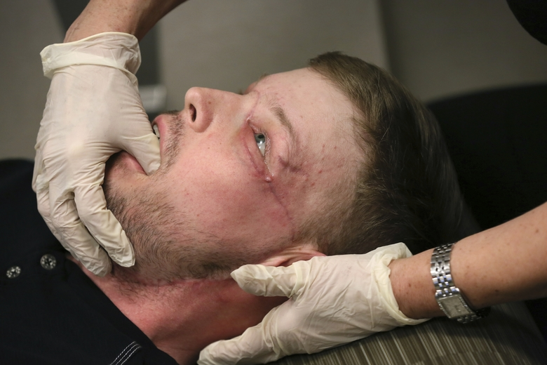 In this Jan. 24, 2017 photo, face transplant recipient Andy Sandness has his face checked during an appointment with physical therapist Helga Smars at Mayo Clinic in Rochester, Minn. Sandness, the first to receive a face transplant at the medical center, has the nose, cheeks, mouth, lips, jaw and chin of his donor. (AP Photo/Charlie Neibergall)