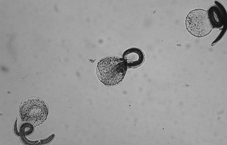 Hatched, stained, nonviable Baylisascaris procyonis larvae.