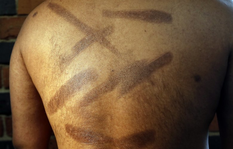 In this July 18, 2017, photo, a Sri Lankan man known as Witness #199 shows the scars on his back during an interview in London. He has tried to commit suicide multiple times because of the traumatic memories of his rape and torture. Raped, branded and beaten repeatedly, more than 50 ethnic Tamil men seeking political asylum in Europe have come forward to say they were abducted and tortured under Sri Lanka's current regime. (AP Photo/Frank Augstein) LFA111 LFA111