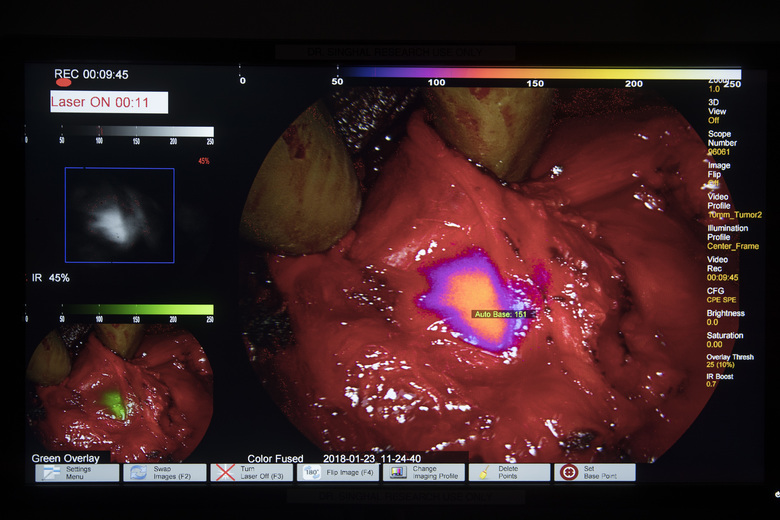 A monitor displays a tumor in a patient on the operating table. The tumor was made visible with the use of a special camera and fluorescent dye, at the Hospital of the University of Pennsylvania in Philadelphia.  (Matt Rourke/AP)