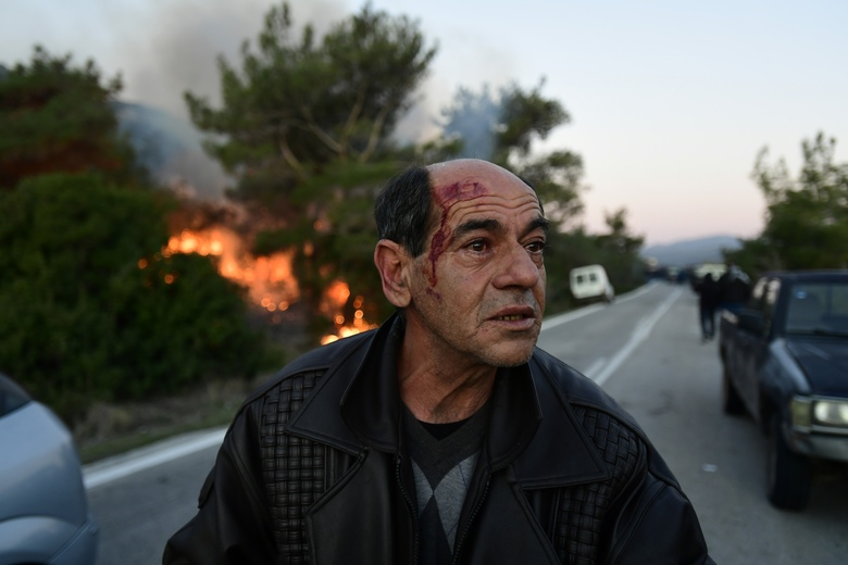 An injured man reacts during clashes with riot police at a roadblock in Karava village near the area where the government plans to build a new migrant detention center, on the northeastern Aegean island of Lesbos, Greece, early Tuesday, Feb. 25, 2020. The Greek government says it is determined to build detention centers on recently appropriated land to replace overcrowded camps on the islands — announcing that construction would resume this week after a brief break for consultations. (AP Photo/Michael Varaklas)
