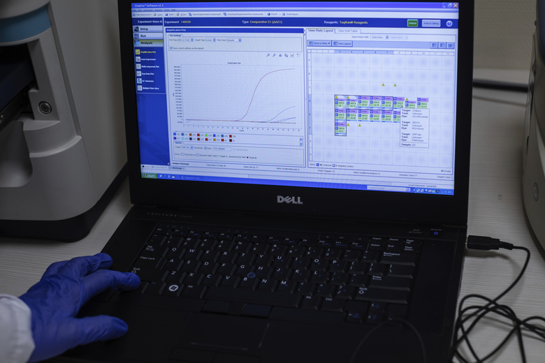 In this Thursday, April 16, 2020 photo, a computer screen shows coronavirus test results at the Clinica CEMTRO lab in Madrid, Spain. The clinic still attends to patients who require emergency treatment for orthopedic traumas, but the staff is mostly dedicated to the COVID-19 patients who are sent by the public hospitals that have been hugely overwhelmed in recent weeks. (AP Photo/Bernat Armangue)