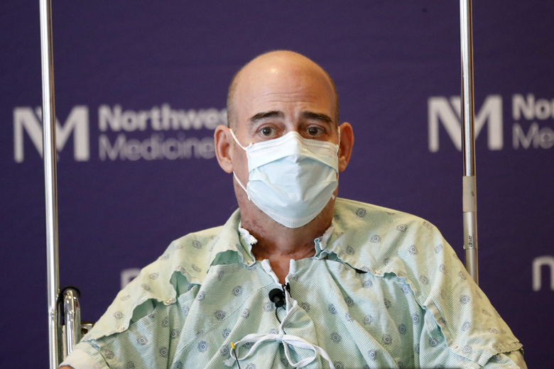 Brian Kuhns, of Lake Zurich, Ill., a COVID-19 survivor due to a double-lung transplant, listens Thursday, July 30, 2020, to a question about his journey through the pandemic during his first news conference at Northwestern Memorial Hospital in Chicago. Kuhns is the second known patient in the United States who received double-lung transplants due to COVID-19. (AP Photo/Charles Rex Arbogast)